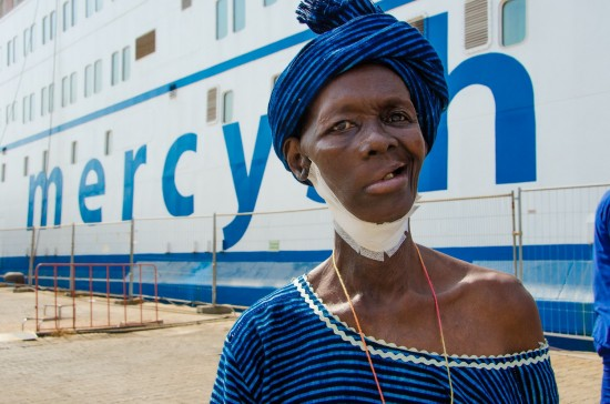 Hasanatu post operation stands outside the Africa Mercy, her whole tumor has now been removed.