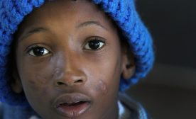 Reducing HIV in Rural African Children