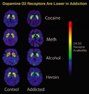 The PET images show that repeated exposure to drugs depletes the brain's dopamine receptors, which are critical for one's ability to experience pleasure and reward.
